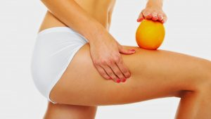 cellulite cause e rimedi