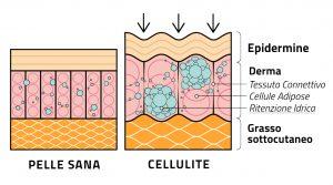 cause della ritenzione idrica